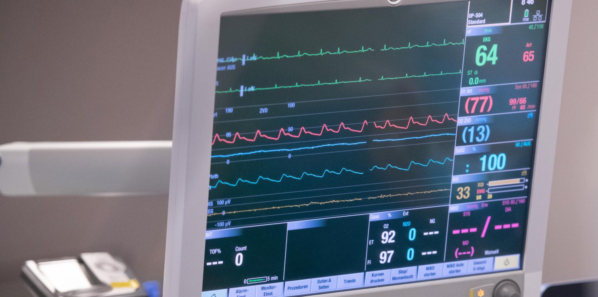 Vorhofflimmern Patienten Herz Monitor